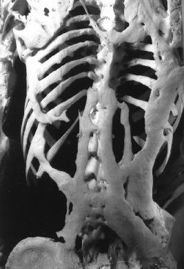 Bone1_skeleton.jpg