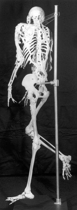 harry_skeleton.jpg