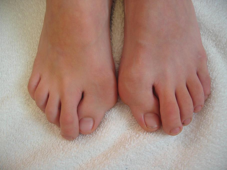 adult_toes_109_0904_72_dpi.jpg