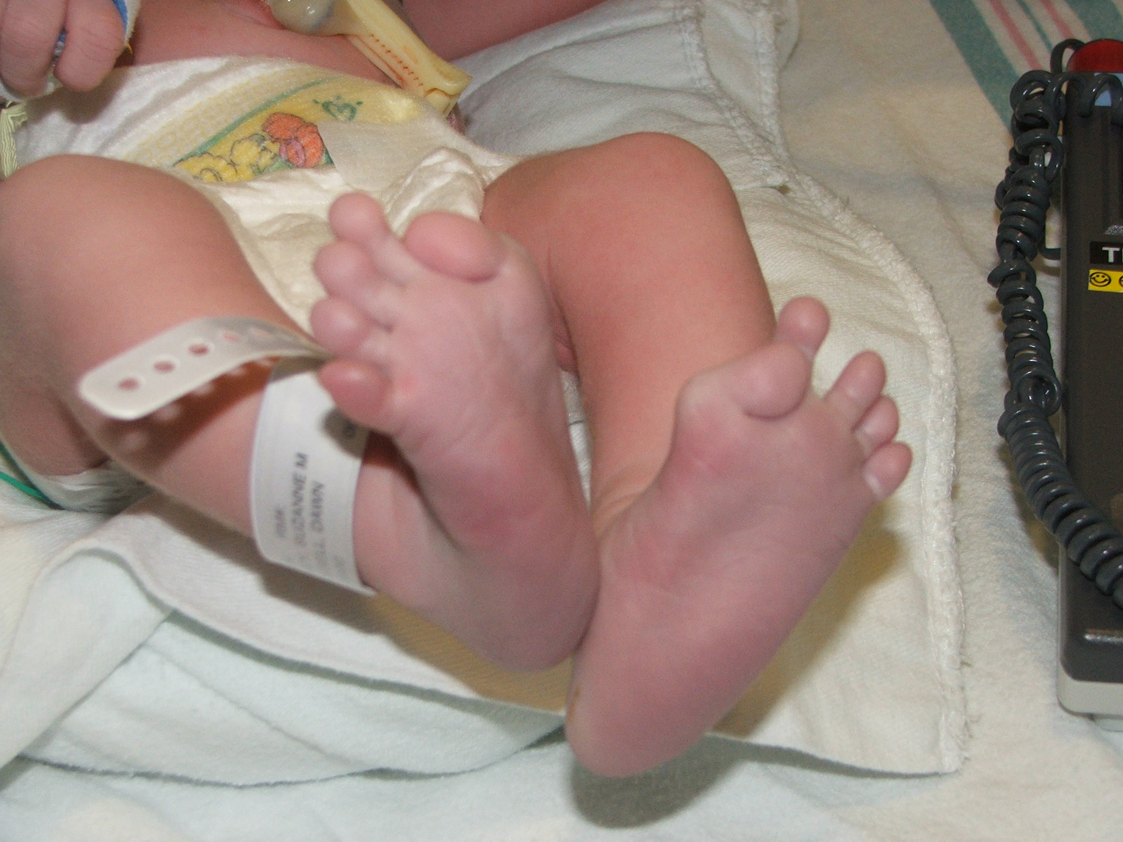 McCloskey_Infant_Toes.JPG