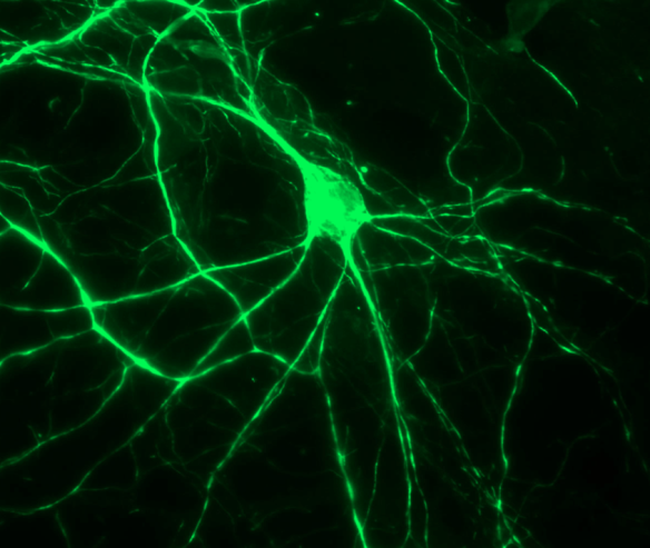 An image of a neuron