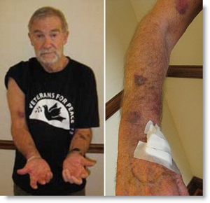 Ray McGovern with bruises