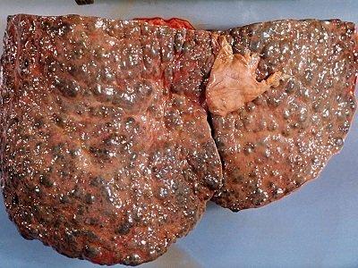 cirrhosis.jpg