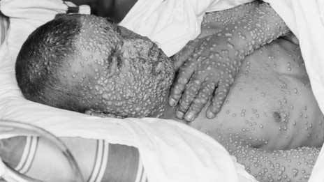 man-with-smallpox.jpg
