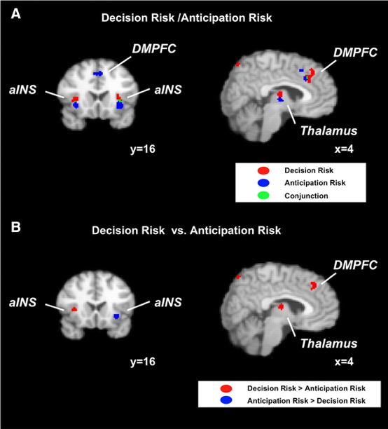 Neural processing of risk