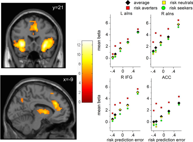 Neural correlates of anticipation risk reflect risk preferences