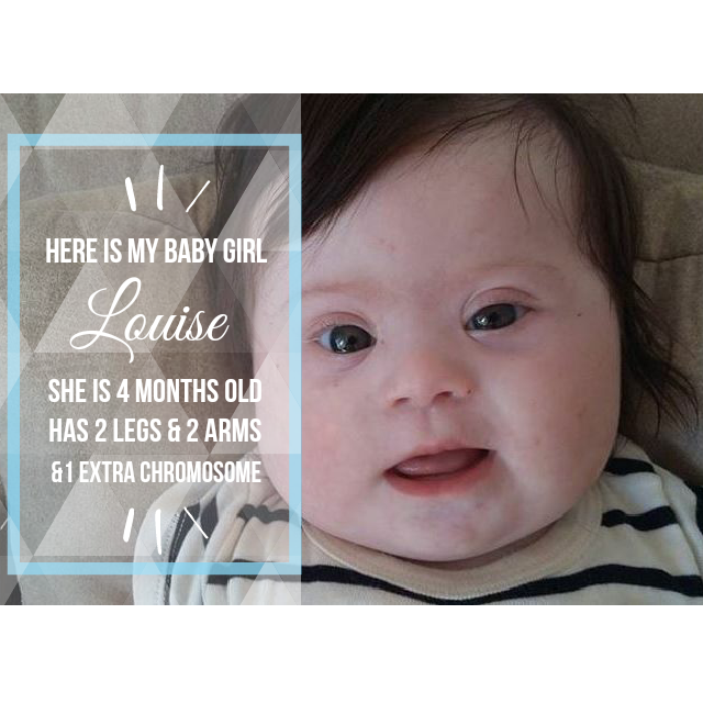 FB_-_6-11-15_Baby_Girl_Louise_with_Down_syndrome.png