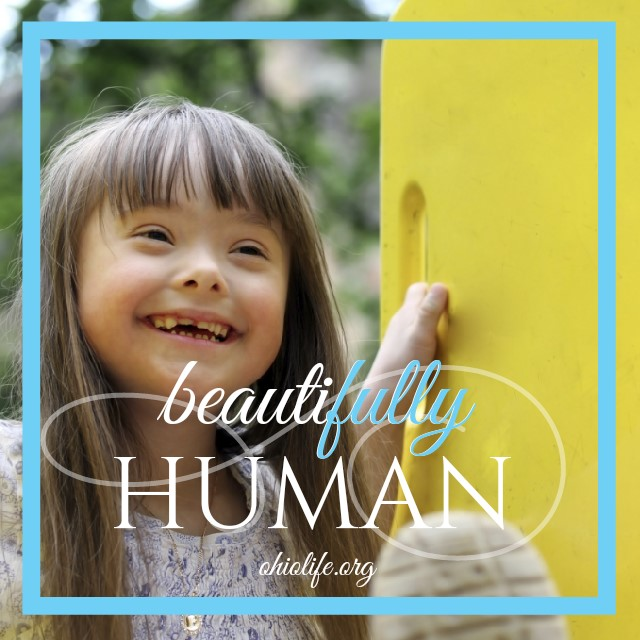 6-3-15_Beautifully_Human_Down_Syndrome.jpg