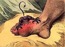 A 1799 caricature of gout.