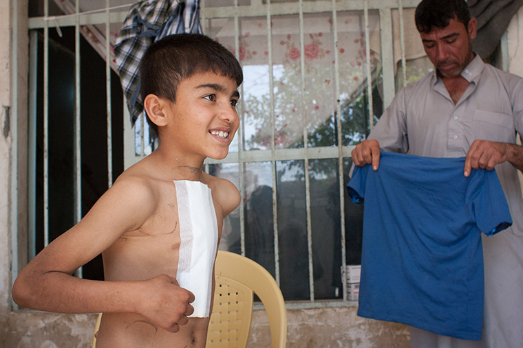 Mohammad, with a fresh bandage on his chest following lifesaving heart surgery, is ready to put on his shirt. via Preemptive Love Corporation