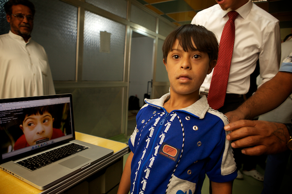 A photo of Hussain, an Iraqi boy in need of lifesaving heart surgery.