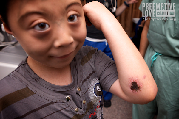 A photo of Nassir showing off his scrape from falling while riding his bike.