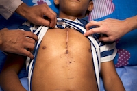 A photo of a child's scar after a lifesaving heart surgery.