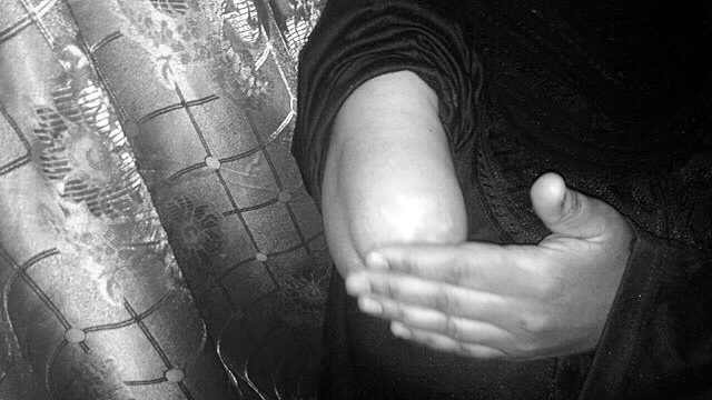 A photo of Madeeha's elbow where she lost her arm