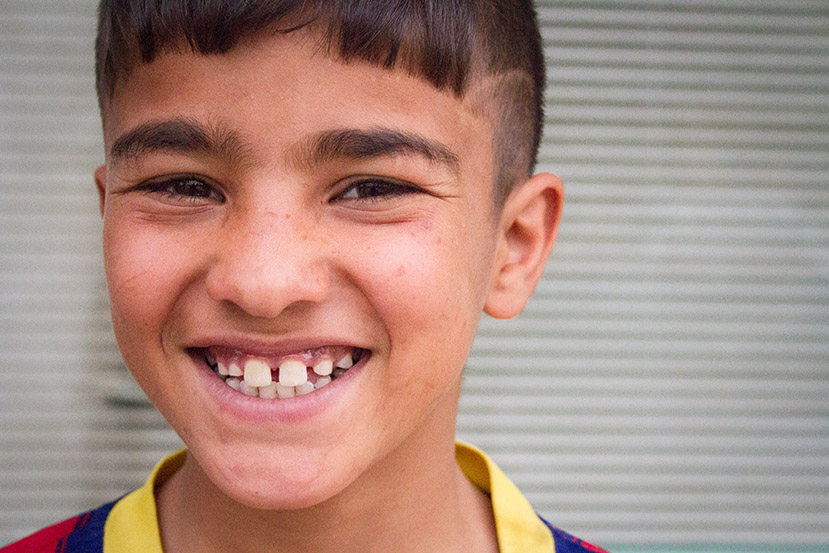 Mohammed smiles a gap-toothed grin. Waiting for heart surgery hasn't taken his smile!