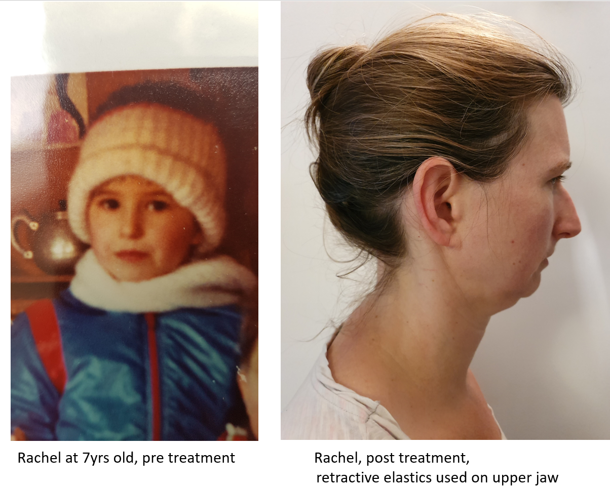 rachel before and after