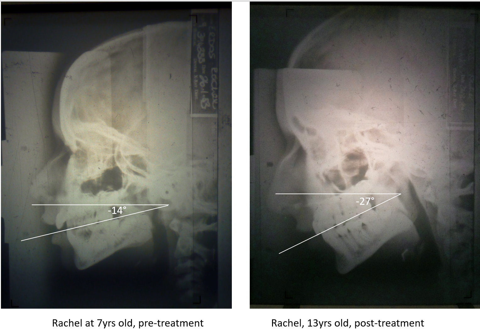 rachel before and after x-ray