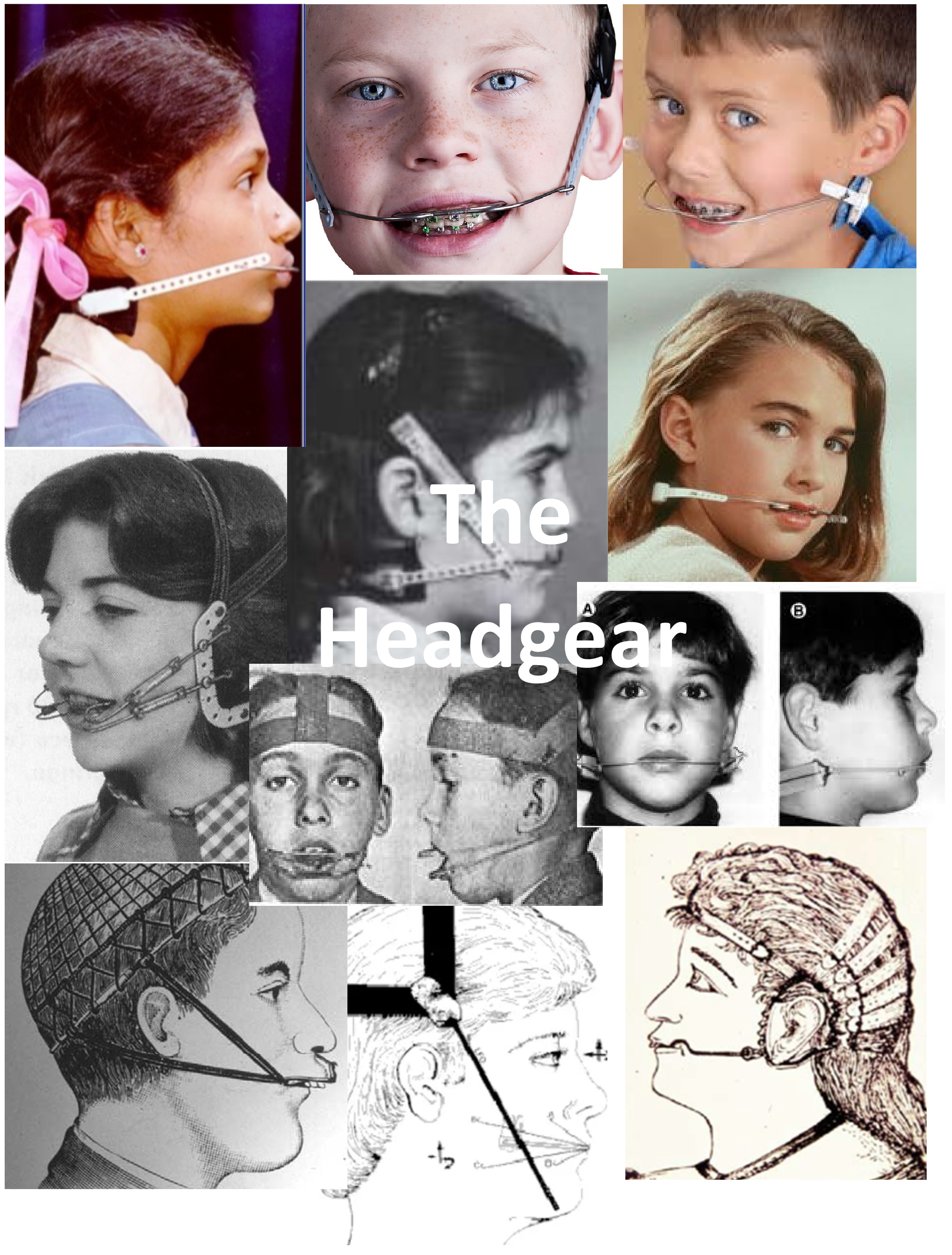 headgear cover page
