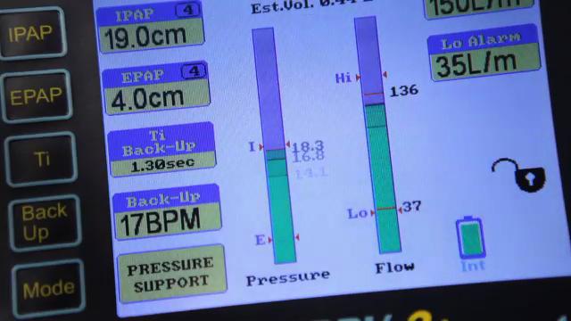 Ventilator-machine2.jpg