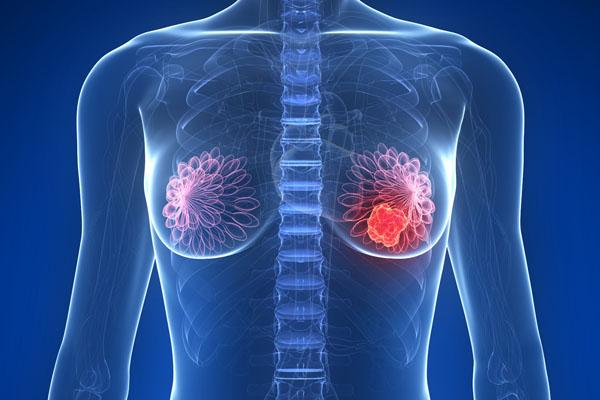 tumores-de-mama-2-1.jpg