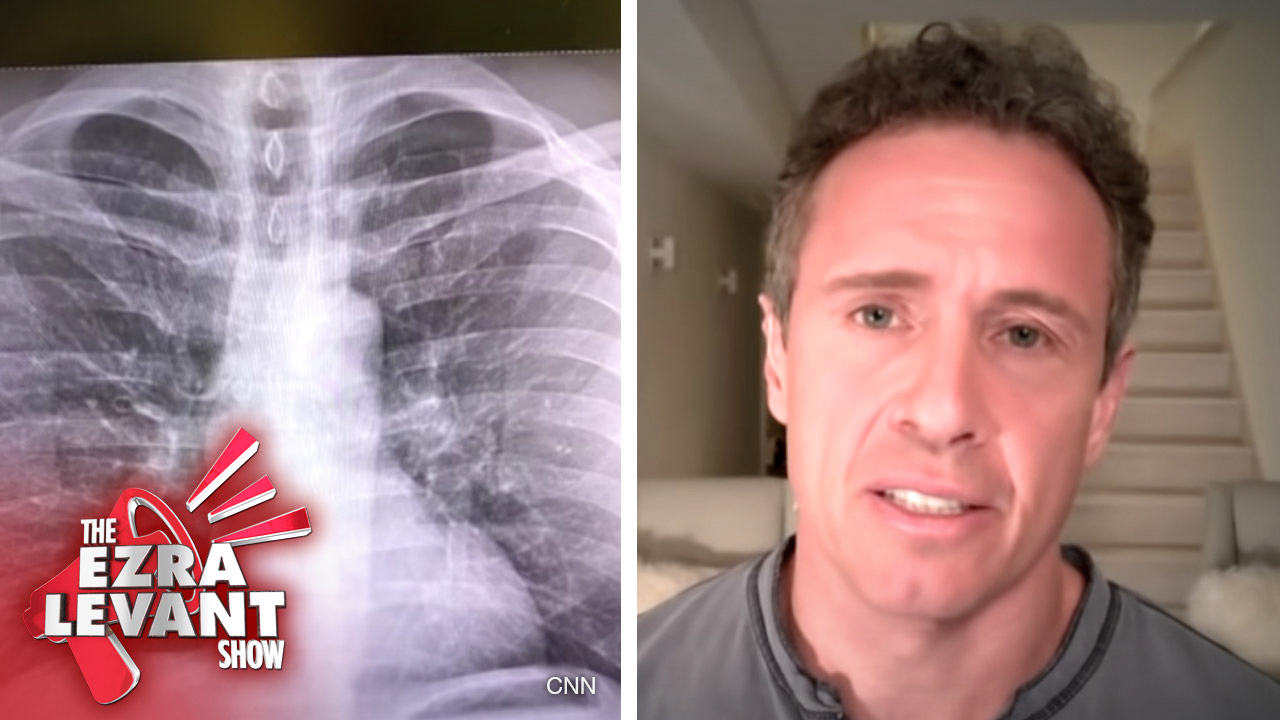 Ezra interviews his father, radiologist Dr. Marvin Levant: Chris Cuomo's coronavirus lung X-ray