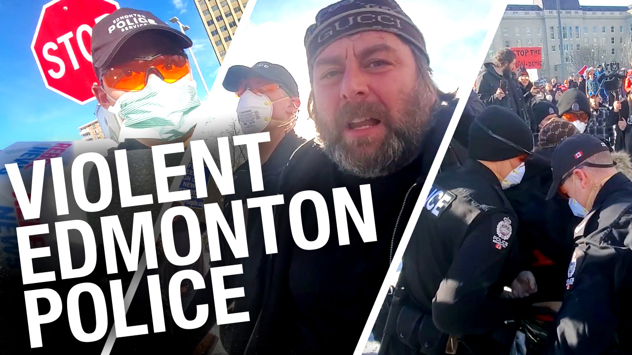 Edmonton police attack peaceful protesters, then turn against journalists