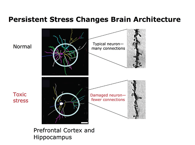 Persistent-Stress-Changes-Brain-Architecture-1.png