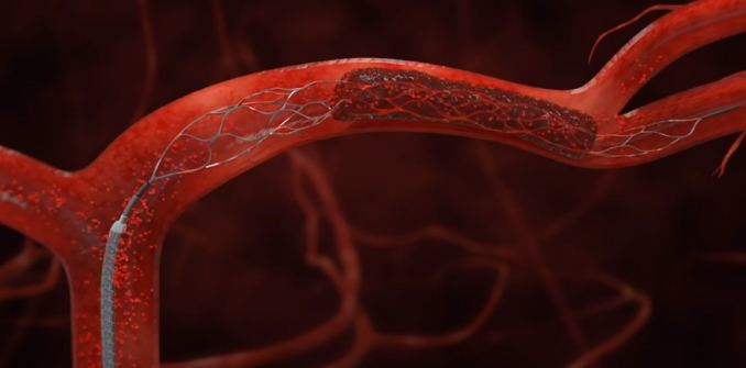 Rendering of mechanical thrombectomy